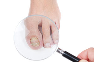 Fungal nail infection under lens