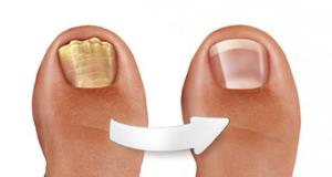 Fungal Nail Treatment Yoffee Clear  - Before and After Application