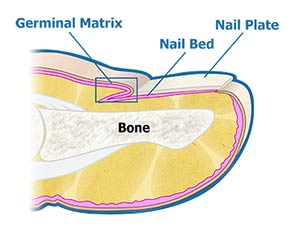 Details of nail fungal infection