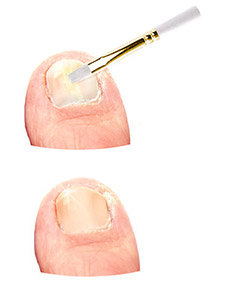 Application of Fungal Nail Treatment Yoffee Clear