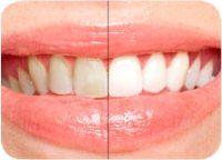 See noticeably whiter teeth in just one week.
