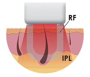 Die elōs-Technologie ist eine einzigartige Kombination von Radiofrequenz (RF) und intensiv gepulstem Licht (IPL)