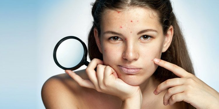 fight acne, acne fighting solutions, acne remedies, natural remedies to fight acne