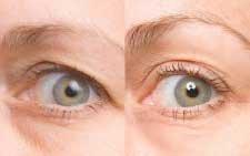 Purafem Red Anti Aging Anti Wrinkle Argireline Serum Plus Under Eye Cream (1 Set)