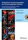 Farbkodierte Duplexsonographie der hirnversorgenden Arterien (mit 72 Videosequenzen auf CD-ROM): Ein Text-Bild-Atlas der methodischen Grundlagen, normalen und pathologischen Befunde