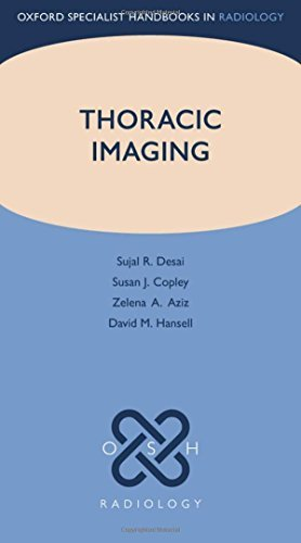 Thoracic Imaging (Oxford Specialist Handbooks in Radiology) by Sujal R. Desai (2012-12-05)
