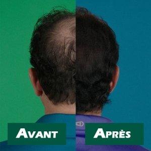 velform hair grow max  Velform Hair Grow Max - Crema che favorisce la ricrescita dei capelli