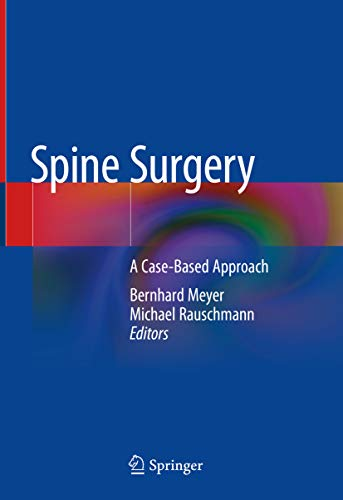 Spine Surgery: A Case-Based Approach (English Edition)