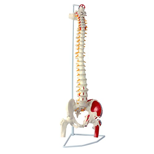 Muskel Wirbelsäule (S24.3117 Flexible Wirbelsäule mit Oberschenkelstümpfen und Muskelbemalung)