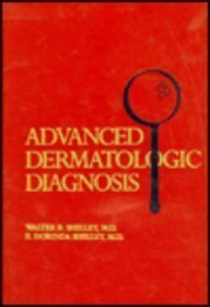 Advanced Dermatologic Diagnosis, 1e by Walter B. Shelley MD PhD (1992-01-15)
