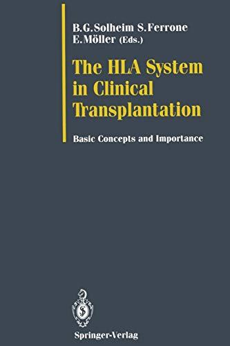 The HLA System in Clinical Transplantation: Basic Concepts and Importance