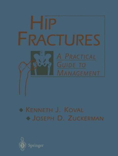 Hip Fractures: A Practical Guide to Management