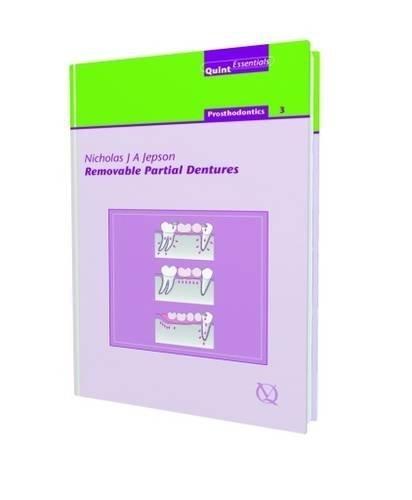 Removable Partial Dentures: 18 (Quintessentials of Dental Practice) by P. Finbarr Allen (2004-05-01)