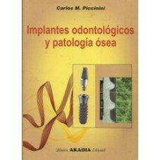 Implantes Odontologicos Y Patologia Osea