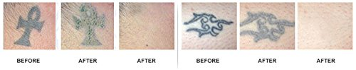 Profade™ 1-2-3 Tattoo Creme | Tattooentfernung | Natürliche Tattooenfernung ohne Laserbehandlungen | Farbpigmente effektiv entfernen