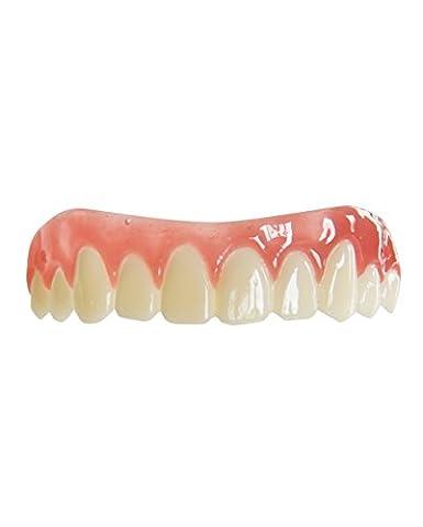 placages dentaires FX Womans sourire