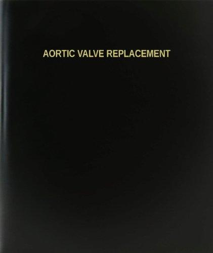 reemplazo-de-la-valvula-aortica-bookfactory-cuaderno-diario-cuaderno-120-pagina-2159-cm-x-2794-cm-ne