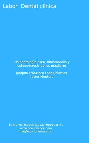 fisiopatologa-sea-bifosfonatos-y-osteonecrosis-de-los-maxilares-labor-dental-clnica-spanish-edition