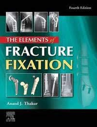The elements of fracture fixation, 4e