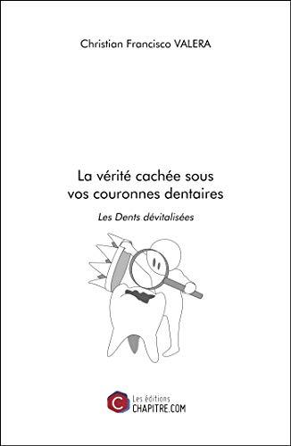 La vérité cachée sous vos couronnes dentaires-Les Dents dévitalisées par Christian Francisco Valera