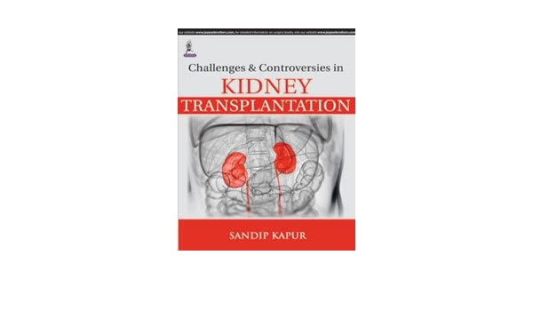 Buy Challenges And Controversies In Kidney Transplantation Book