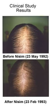 NISIM HAIR LOSS THINNING HAIR ITCHY SCALP DANDRUFF TREATMENT SHAMPOO MEN WOMEN