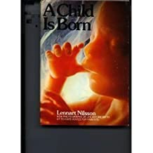 A Child Is Born: New Photographs of Life Before Birth and Up-to-Date Advice for Expectant Parents by Mirjam Furuhjelm (1977-08-01)