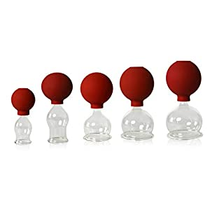 5er Schrpfglas Set Mit Ball 25 35 45 55 60mm Zum Professionellen Medizinischen Feuerlosen Schrpfen Schrpfglas Schrpfglser Lauschaer Glas Das Original