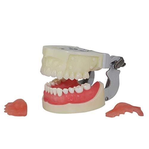 JOND Anatomicdental Oral Typodont Modell, Praxis Abnehmbare Flossing Zähne Gingiva Sichtbar Anatomie Studie Diseased Zahnmodell, Zahn Forschung Und Patientenaufklärung