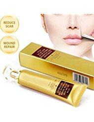 Akne Narbe entfernen creme, Skin Repair Cream Narbe Creme Gel Narben Behandlung für Gesicht und Körper Narbe Akne Spots Dehnungsstreifen 30 ml