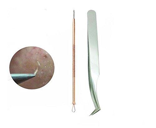 2er Set Professionelle Edelstahl Mitesser Entferner Kit Fett Granulat Komedone Zit Pickel Extractor Werkzeuge mit Fall Nase Gesicht