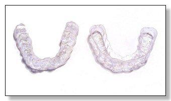 Bleachingschienen im Schweizer Zahnlabor massangefertigt