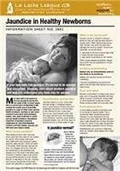 Jaundice in Healthy Newborns