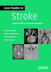 Case Studies in Stroke: Common and Uncommon Presentations (Case Studies in Neurology)