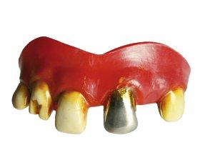 Horror Zähne - verschiedene Muster - ideal für Fasching - Wolfzähne - Hexe - Vampir - Freankenstein - Spangen ! (Wolfman Kostüme)