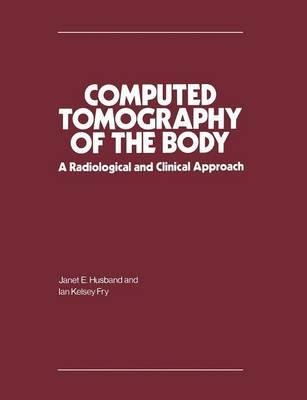 By Janet E Husband ; Ian Kelsey Fry ; Janet E Husband ; Ian Kelsey Fry ( Author ) [ Computed Tomography of the Body: A Radiological and Clinical Approach (1981) By Jun-1983 Paperback
