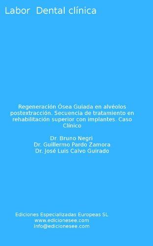 regeneracin-sea-guiada-en-alvolos-postextraccin-secuencia-de-tratamiento-en-rehabilitacin-superior-c