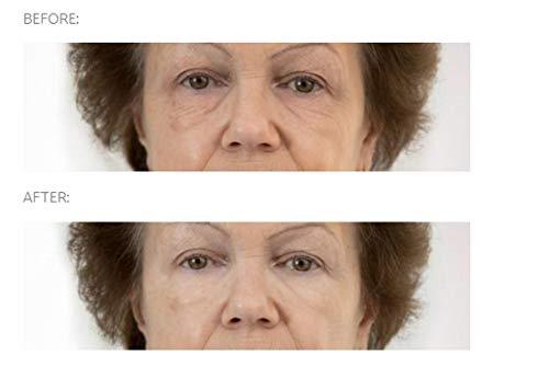 Beverly Hills Sofort Facelift und Auge Tuck Serum | 30ml | Beseitigt Falten in 90 Sekunden | Anti-Aging-Formel mit Veegum und Argireline | Ideal für dunkle Augenringe, Schwellungen und Falten