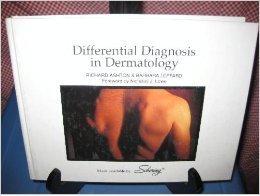Differential Diagnosis in Dermatology, Second Edition por Richard Ashton