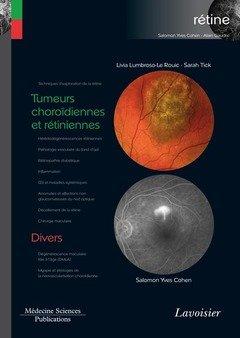 Coffret Rétine : Tome 8, Tumeurs choroïdiennes et rétiniennes ; Divers