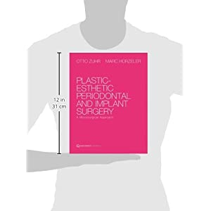 Plastic-Esthetic Periodontal and Implant Surgery : A Microsurgical Approach