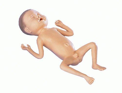 Frühgeborenen-Modell, 24 Wochen alt