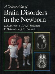A Colour Atlas of Brain Disorders in the Newborn by Victor Dubowitz (1990-06-30)