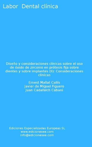 Diseño y consideraciones clínicas sobre el uso de óxido de zirconio en prótesis fija sobre dientes y sobre implantes (II): Consideraciones clínicas (Labor Dental Clínica) por Ernest Mallat