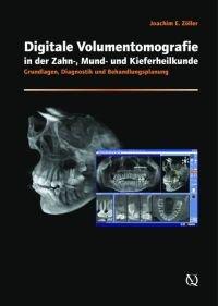 Cone-beam Volumetric Imaging in Dental, Oral and Maxillofacial Medicine: Fundamentals, Diagnostics and Treatment Planning