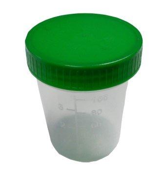 Urinbecher 100 Stück Urinprobenbecher 125ml mit grünem Schraubdeckel graduiert beschriftbar