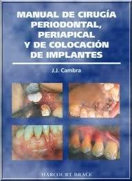 Manual cirugia periodontal