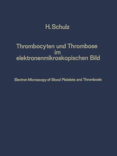 Thrombocyten und Thrombose im Elektronenmikroskopischen Bild / Electron Microscopy of Blood Platelets and Thrombosis