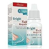 Feet Cream Bright Nail Repair Nails Removal Kills Bacteria Fungus Nail Treatment Onychomycosis