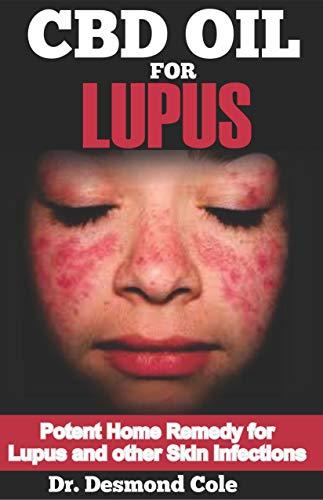 Gesundheit Glucosamin (CBD OIL FOR LUPUS: Potent Home Remedy for Lupus and other Skin Infections (English Edition))